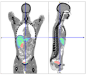 Harborview Medical Center PET/CT scanner facility - image of scan