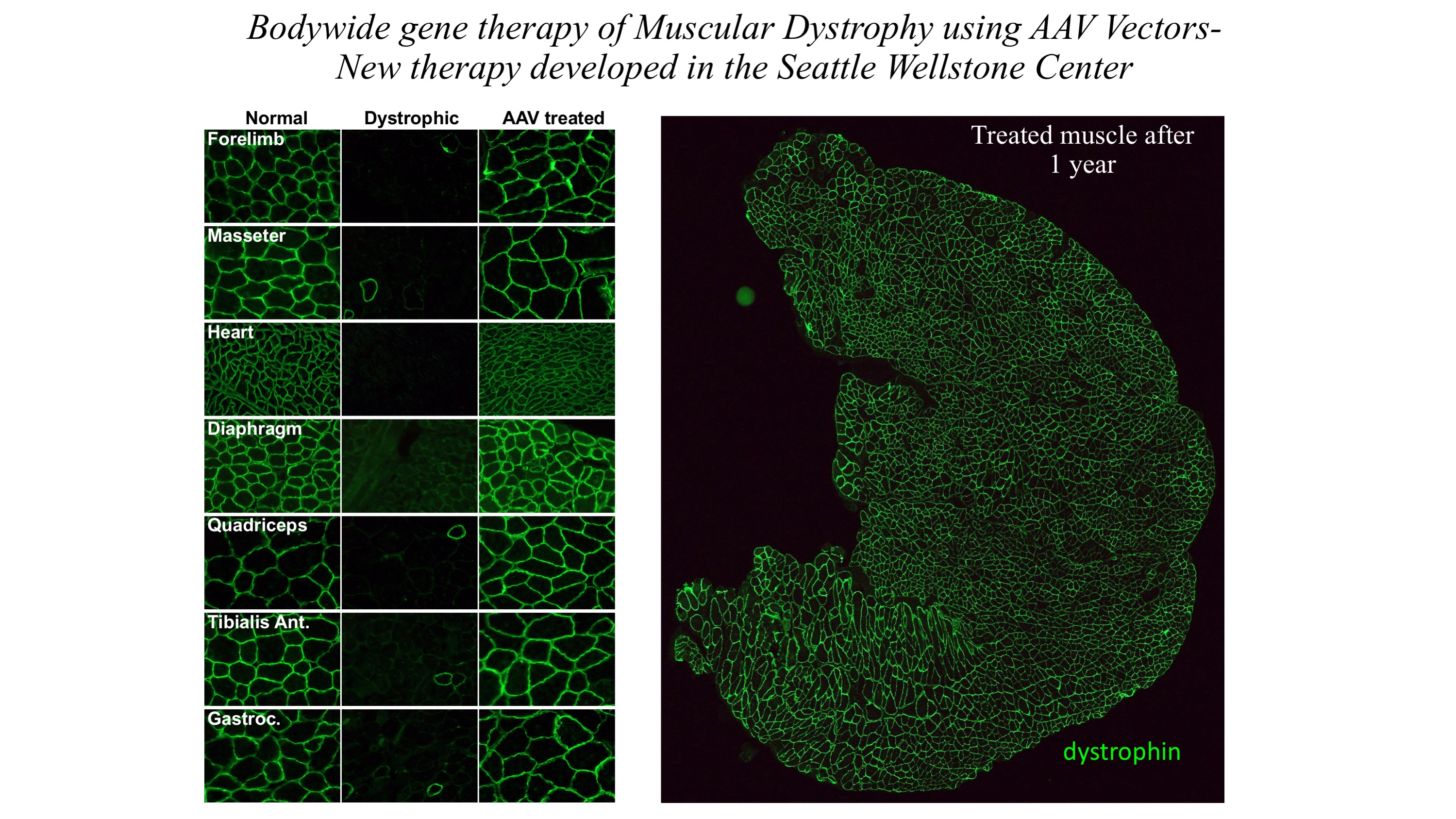 Wellstone - image of bodywide gene thereapy using AAV vectors - new therapy developed in the Seattle Wellstone Center